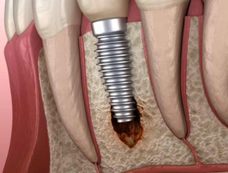 Failed Osseointegration Port St Lucie Tooth Rejection Specialist stuart florida