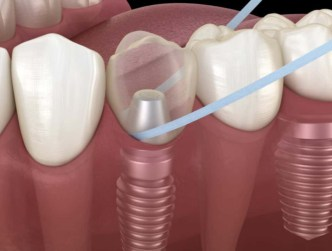 Port St. Lucie All-on-4 dental implants after care stuart