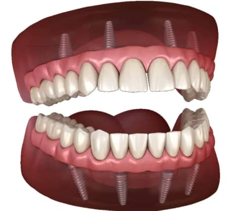 All on 4 Dental Implants Stuart Full Mouth Dentures Port St Lucie