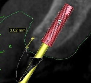 computer guided implant technology