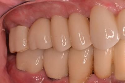 dental patient experiences in stuart florida