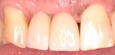 Dental Implant Patient Testimonial