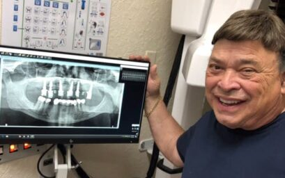 All on 4 dental implants in a day near port st lucie
