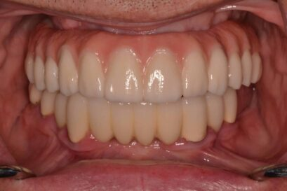 Dental Implants before and after 2