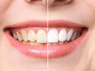 Teeth Whitening Stuart FL Yellow Teeth Port St Lucie