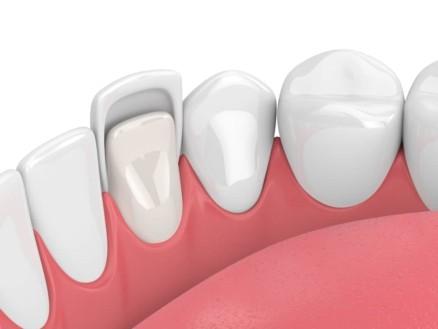 Dental Veneers Stuart Florida