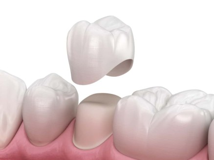 Dental Crowns Stuart florida