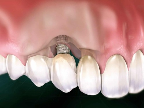Peri-implantitis Port St Lucie Tooth Rejection Specialist stuart florida