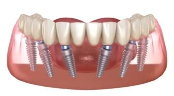 All on 6 Lower Arch Titanium Dental Implant Stuart FL