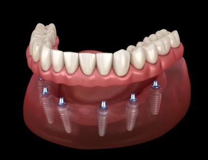 Full Mouth Dental Implants All on 6 Complete Permanent Dentures Stuart FL
