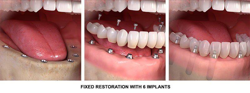 Full Mouth all on 6 dental Implants procedure stuart fl