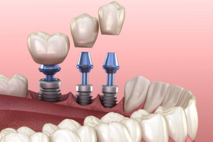 Dental Implants Stuart Teeth in a Day Port St Lucie