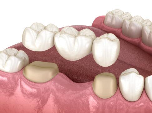 Dental Bridges in One Day Stuart Cosmetic Dentist Port St Lucie