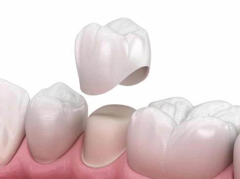 Dental Crowns Stuart Dental Caps Port St Lucie