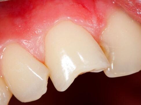 Dental Bonding Stuart Cosmetic Dentist Port St Lucie Chipped Tooth