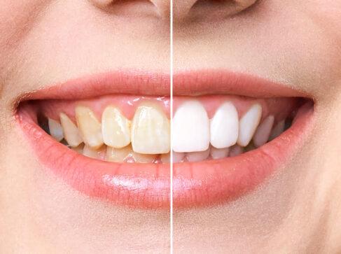 Teeth Whitening Stuart FL Yellow Teeth Port St Lucie