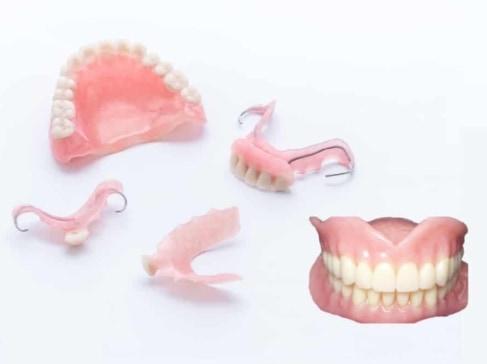 Stuart Custom Dentures in one day Port St Lucie Types of Denture