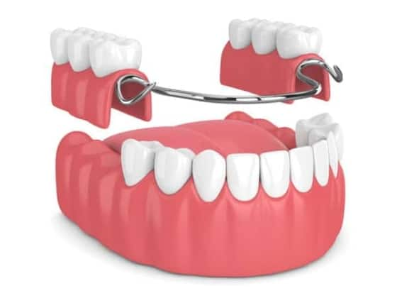 Types of Dental Implants Stuart Florida Removable Partial Dentures Port St Lucie