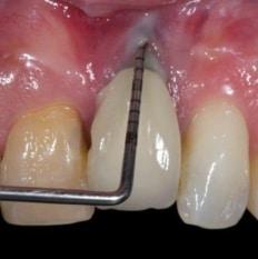 Dental Implant Failure Port St Lucie Signs Gum Inflammation Stuart