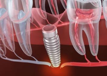 Why do implants fail port st lucie dental implant failure stuart